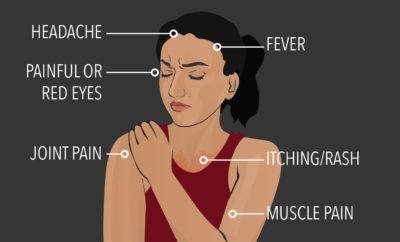 zika virus singapore